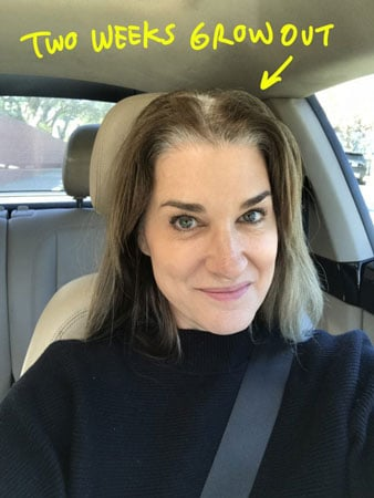 image of transition to gray hair at two weeks