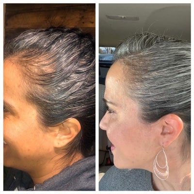 An example of hair regrowth when using the dye technique for going gray